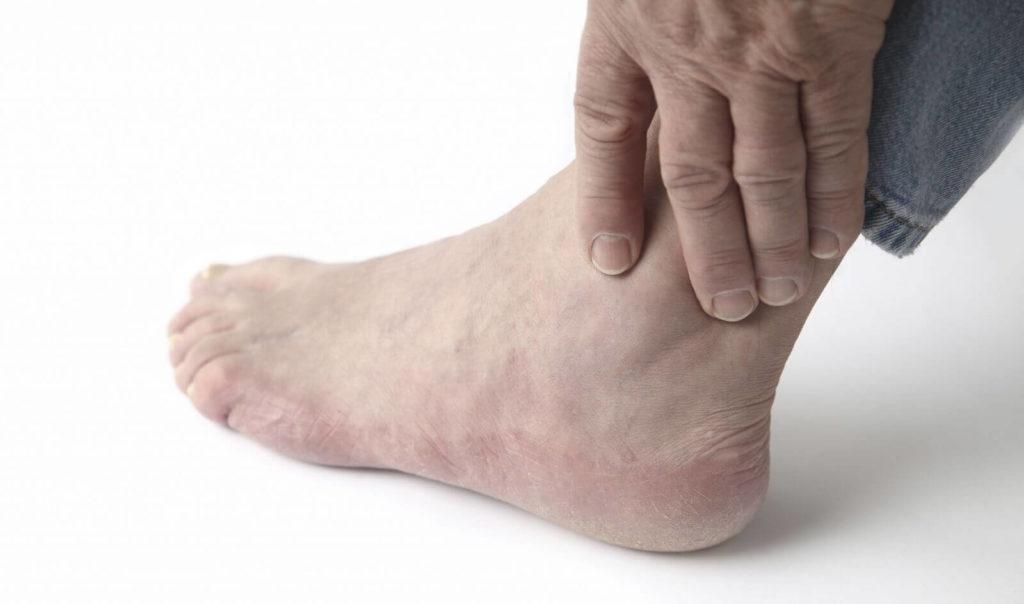 Основные симптомы артроза голеностопа и лечение патологии