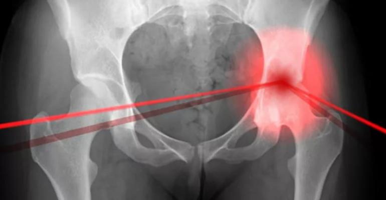 Артрит тазобедренного сустава симптоматика причины и лечение