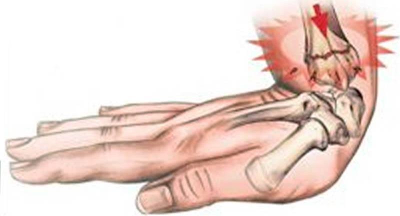 Особенности лечения при переломе кисти руки