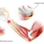 Почему болят суставы при беременности и к какому врачу обратиться