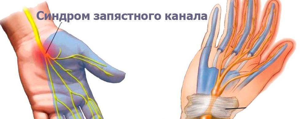 Изображение - Почему у беременных болят суставы пальцев рук pochemu-pri-beremennosti-bolyat-sustavy-pal-cev-ruk-simptomy-i-prichiny-2