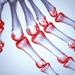 Изображение - Почему у беременных болят суставы пальцев рук pochemu-pri-beremennosti-bolyat-sustavy-pal-cev-ruk-simptomy-i-prichiny-4