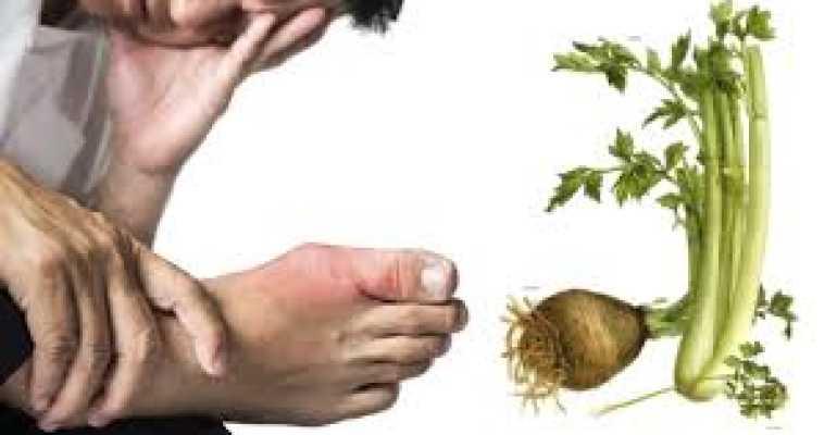 Польза сельдерея при лечении подагры