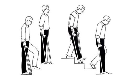 Полезные советы о том, как научиться ходить на костылях при переломе ноги