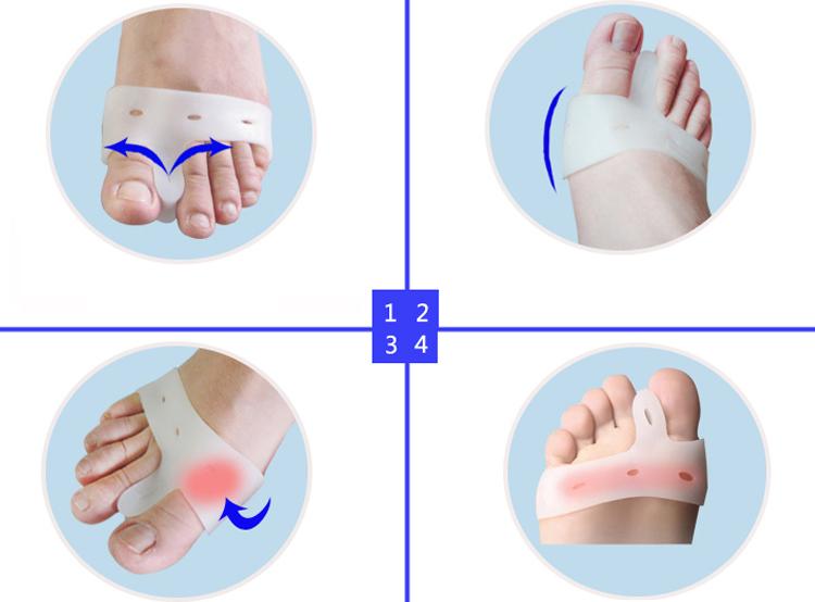 Правила использования фиксатора для излечения косточек на ноге