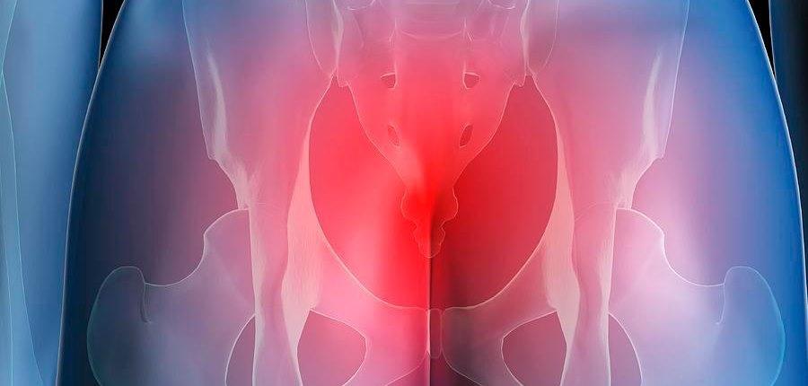 Причины боли в копчике у женщин и методы их устранения