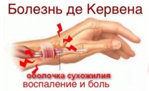 Причины, диагностика и лечение болей суставов пальцев рук