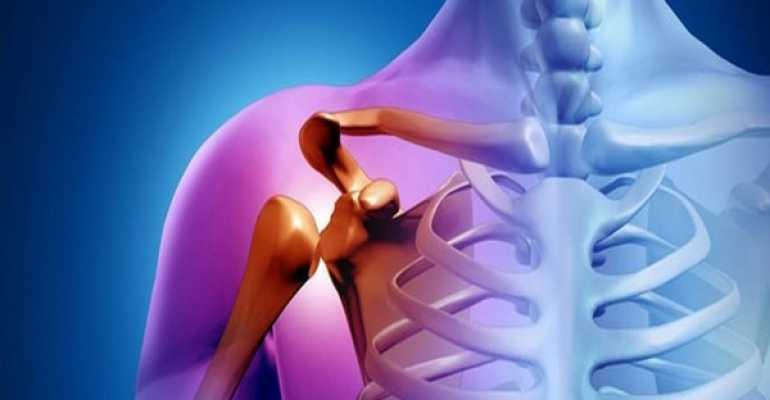Артрит плечевого сустава симптомы и методы лечения