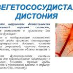 Причины и лечение панических атак при шейном остеохондрозе
