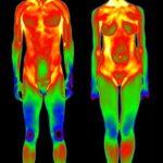 Причины развития артроза 4 степени коленного сустава