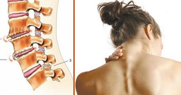 С диагнозом смещение позвоночника шейного отдела