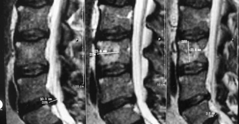 Остеобластома кости лечение