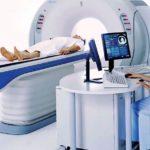 Причины возникновения у позвоночника костных опухолей остеобластома
