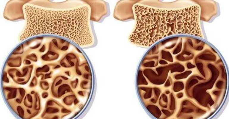 Знаете ли вы разницу между остеопенией и остеопорозом