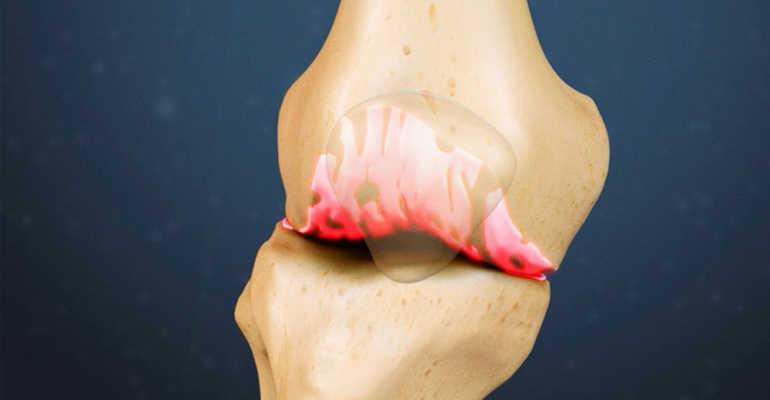 Рецепты проверенных народных средств для лечения жидкости в коленном суставе