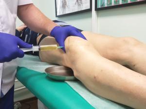Коленный сустав скопление жидкости лечение народными thumbnail