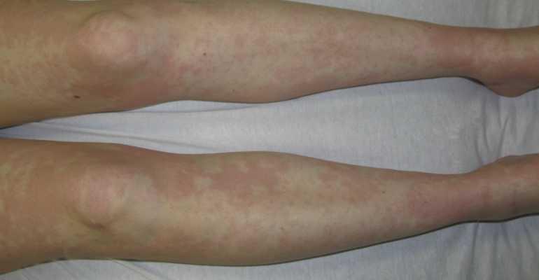 Редкая разновидность артрита — болезнь Стилла