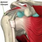 Рекомендации лечения импиджмент-синдрома сустава