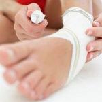 Рекомендации по реабилитации после перелома пятки