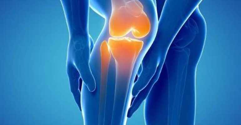 Пателлофеморальный артроз коленного сустава что это такое