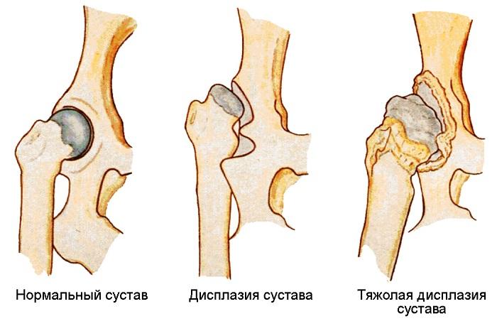 Симптоматика и лечение пателлофеморального артроза коленного сустава
