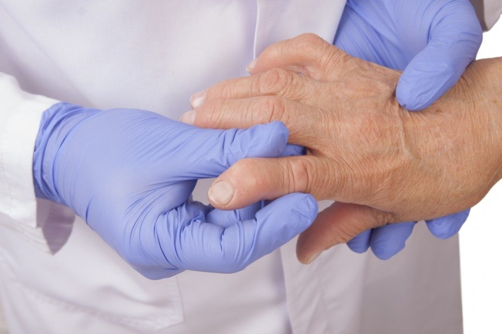Симптоматика серонегативного ревматоидного артрита, лечение