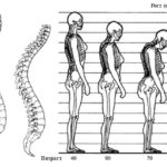 Симптомы и методы лечения корешкового синдрома шейного отдела позвоночника
