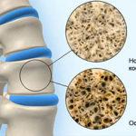 Советы по занятию йогой при артрозе коленного сустава