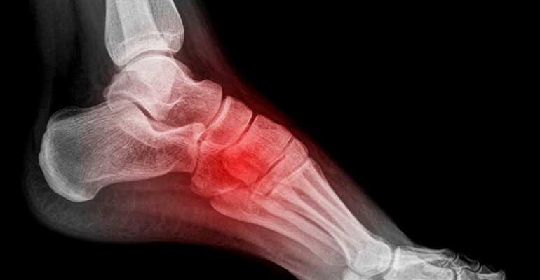 Остеопороз ноги симптомы и лечение