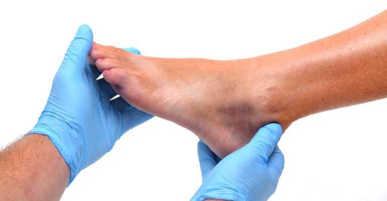 Перелом 5 плюсневой кости стопы
