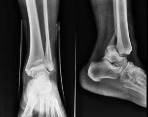 Способы лечения перелома пятой плюсневой кости