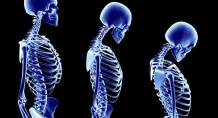 Степени прогрессирования и методы устранения гиперкифоза грудного отдела позвоночника