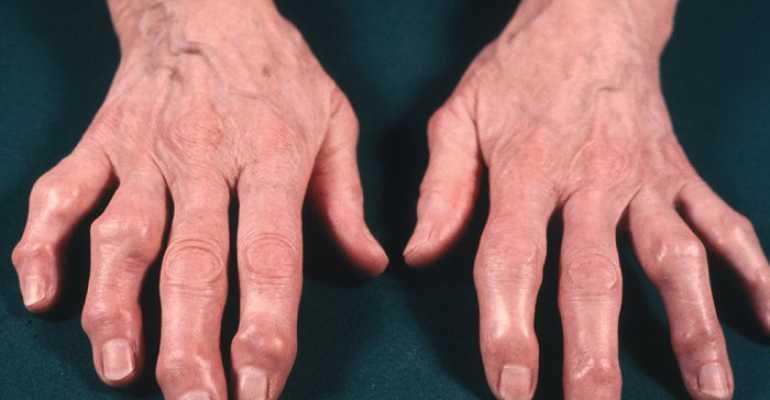 Узелки Гебердена и Бушара – причины возникновения, методы диагностики, симптоматика, методы консервативного и хирургического лечения
