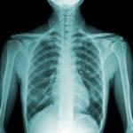 В чем разница между такими заболеваниями как протрузия и грыжа