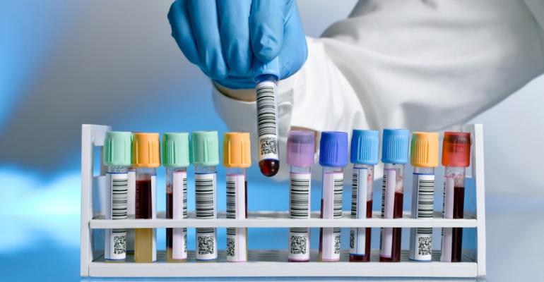 Анализ мочевой кислоты при подагре