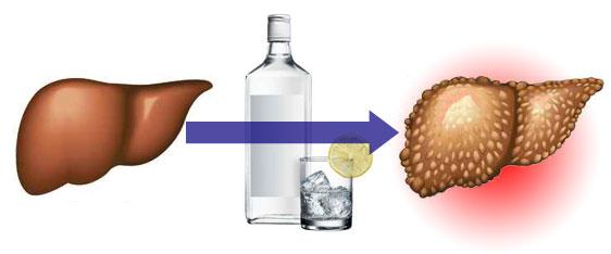 Влияние алкоголя на организм при остеохондрозе