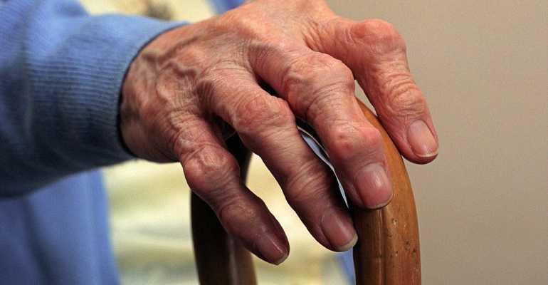 Дают или нет инвалидность при псориатическом артрите, положена ли она ревматоидном артрите