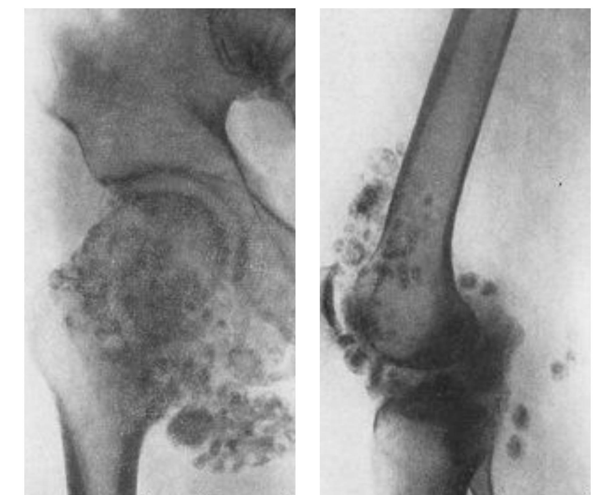 Возможные осложнения и лечение остеохондромы бедренной кости