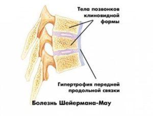 Юношеский кифоз илиболезнь Шейермана-Мау