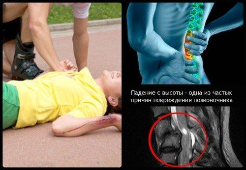Чем опасна фораминальная грыжа, способы лечения