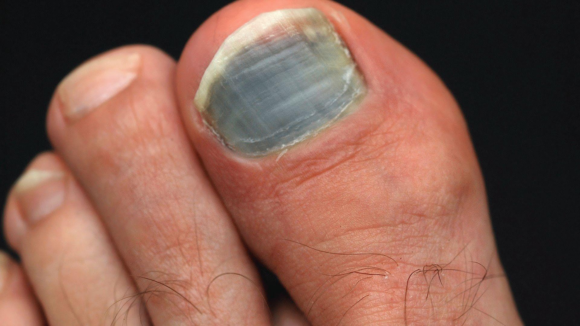 Диабет почему почернел ноготь на но