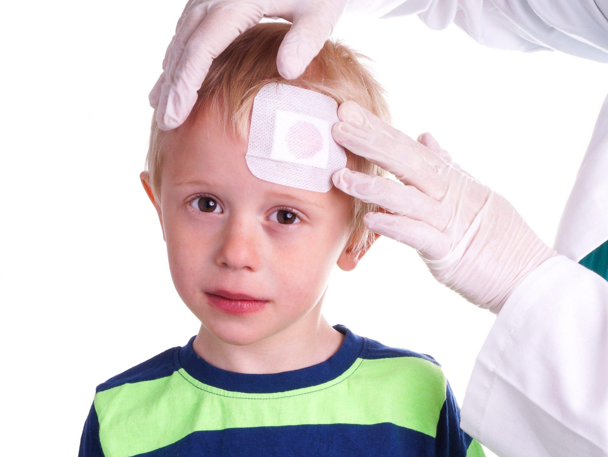 Что делать если у ребенка перелом теменной кости?