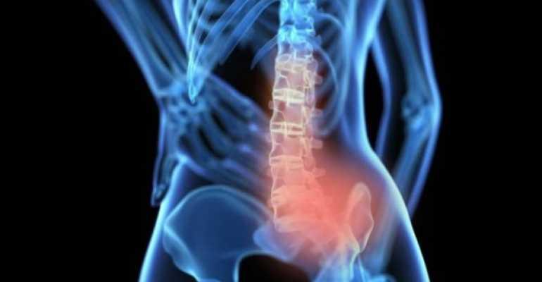 Что нужно делать при артрозе позвоночника для эффективного лечения