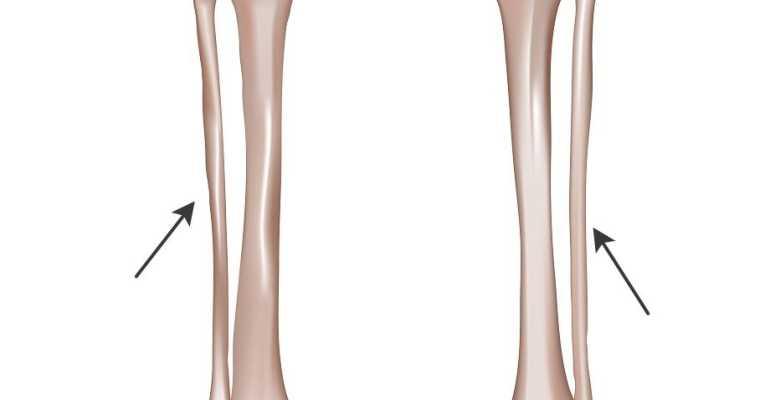 Лечение закрытых переломов и трещин малоберцовой кости со смещением и без