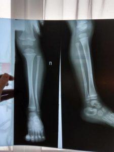 Что предпринимать при переломе малой берцовой кости