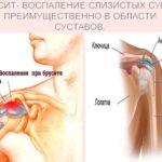 Что такое бурсит плечевого сустава и какую опасность несет болезнь