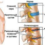 Что такое дорсопатия шейного отдела позвоночника и чем она опасна