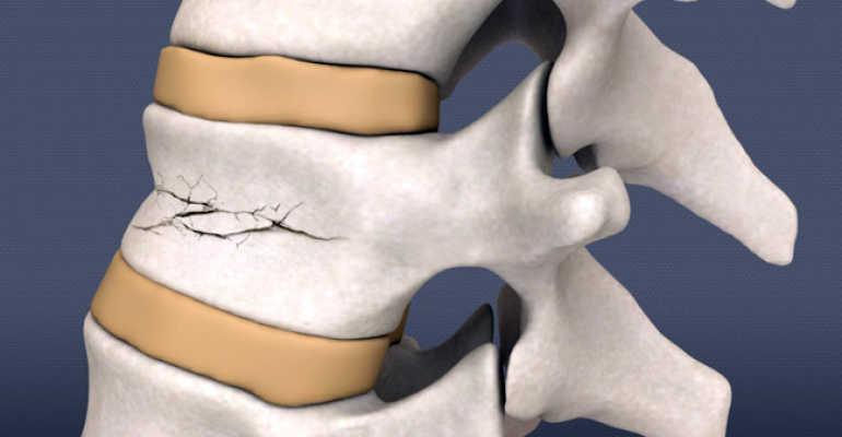 Что такое компрессионный перелом позвоночника и как его лечить