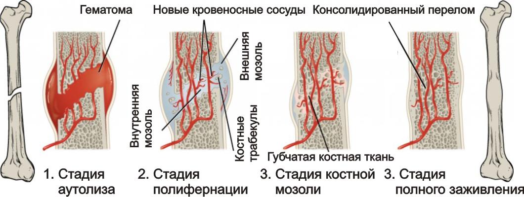 Что такое консолидированный перелом? Подробное описание термина