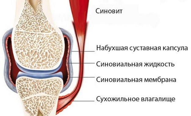 Что такое синовит плечевого сустава и чем он опасен